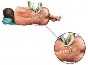 Analgezie epidurala