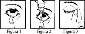 Prospect Timolol 5mg/ml, picaturi oftalmice