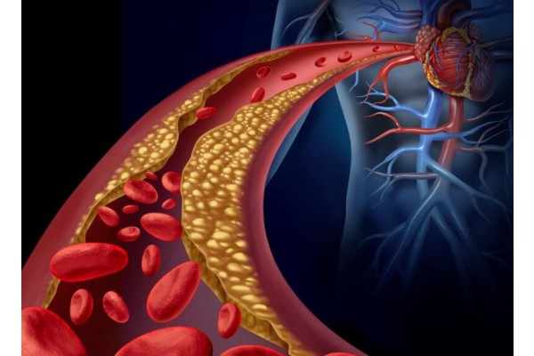 Cum afecteaza Dislipidemia?