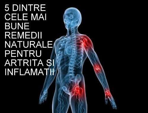 5 remedii naturale pentru artrita si inflamatii articulare