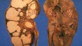 Tratament acidoze tubulare renale