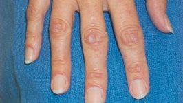 Atrofia congenitală a pielii Gottron