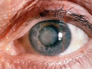 Albeata la ochi - cataracta