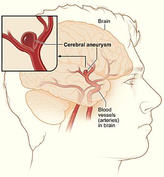 Accident vascular cerebral