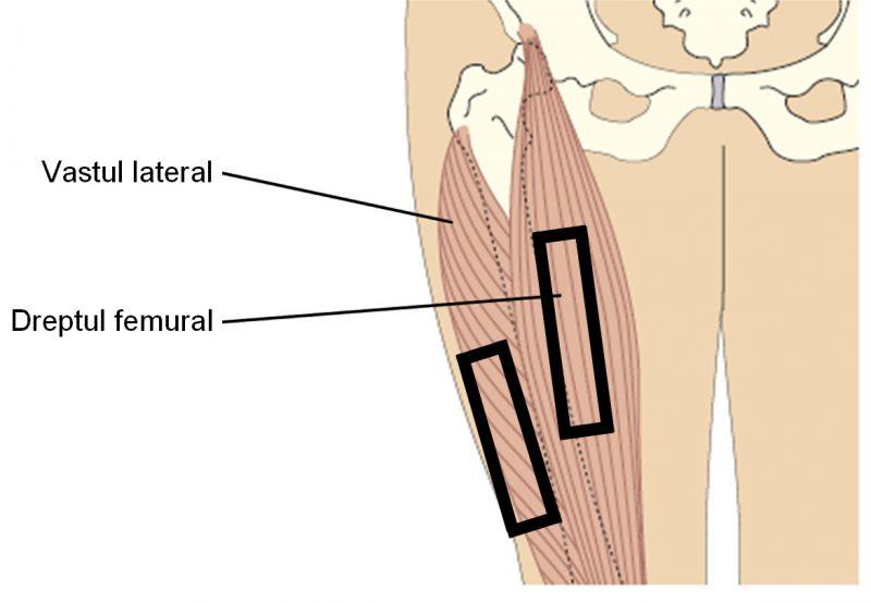 Injectie in picior