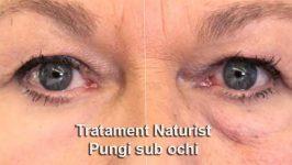 Metode pentru a scapa de pungile de sub ochi