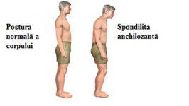 Ingrijirea pacientului cu Spondilita Anchilozanta