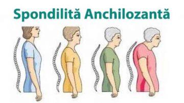 Spondilita-anchilozanta