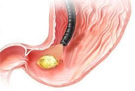 Ulcer prevenire si tratament