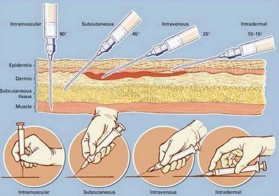 Unghiul de intrare al injectiilor