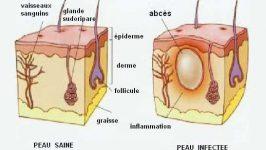 Tratament naturist Abces cutanat
