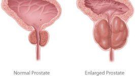 Tratament Naturist Abces prostatic