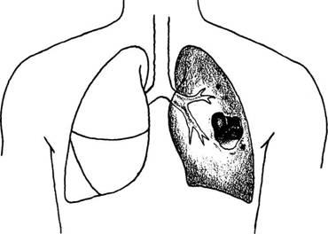 Tratament naturist abces pulmonar