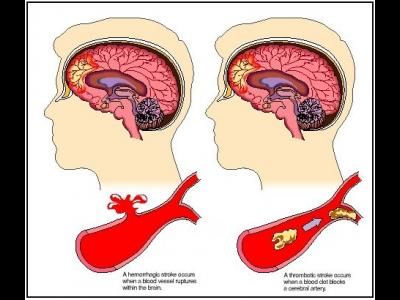 Accident ischemic vascular cerebral