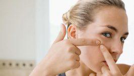 Tratament naturist pentru cosuri si acnee