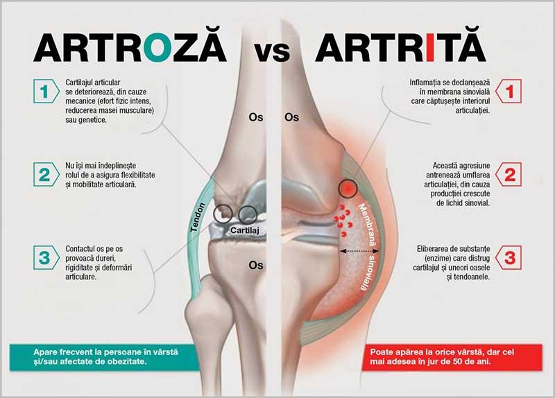 Cum tratam artroza?