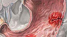Cum tratam naturist bolile digestive ?