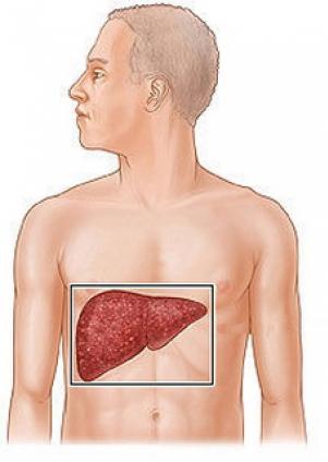 Cum tratam bolile hepatice si biliare ?