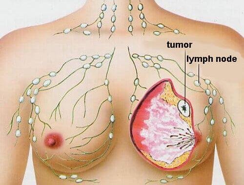 Cum puteţi reduce riscul apariţiei cancerului la sân?