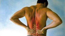 Tratamente naturiste pentru durerile lombare