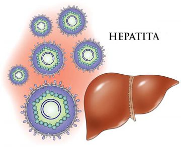 hepatita