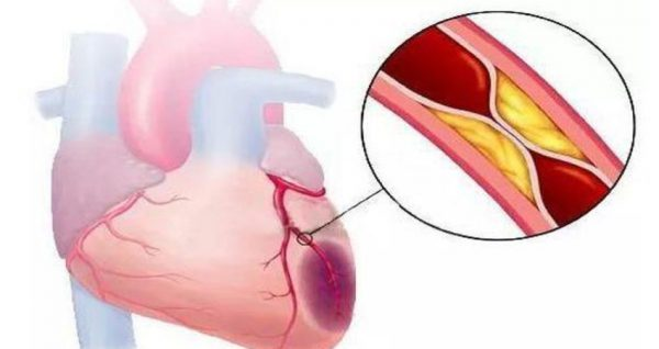 infarct miocardic acut