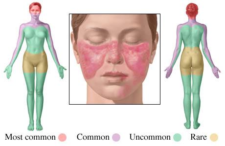 lupus erimatos tratament