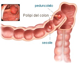 Tratamentul naturist al polipilor