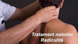 Tratament Radiculita