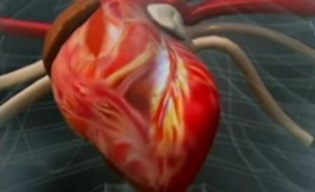 refacerea tratamentul inimii