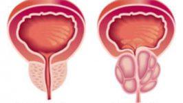 Tratamentul bolilor prostatei
