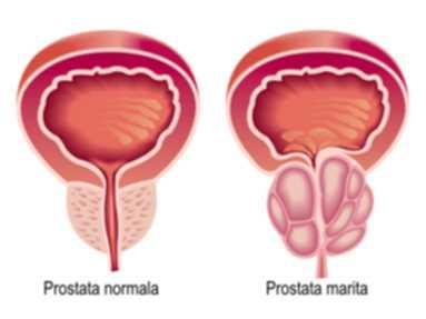 tratament prostata
