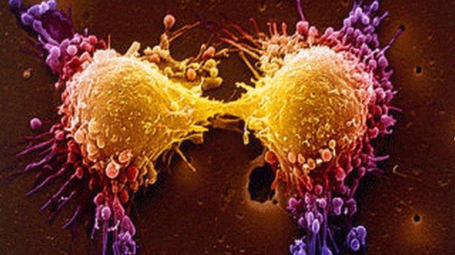 Cum tratam diferite forme de cancer