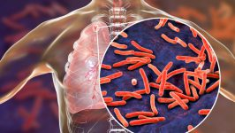 Tuberculoza Cauze si Tratament