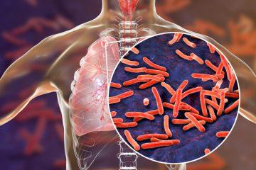 tuberculoza-tratament-naturist