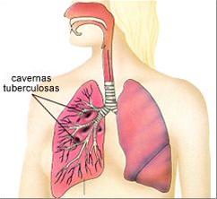 Sa Tratam naturist TBC -ul