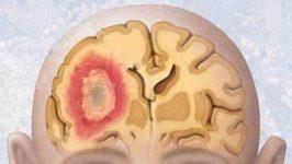 Tratament naturist pentru vindecarea tumorilor cerebrale
